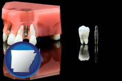 arkansas map icon and a titanium dental implant and wisdom tooth