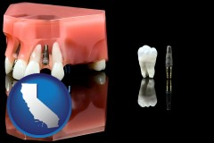 california map icon and a titanium dental implant and wisdom tooth