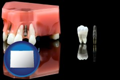 colorado a titanium dental implant and wisdom tooth