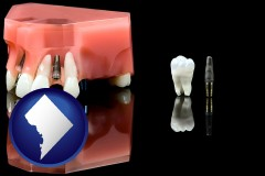 washington-dc map icon and a titanium dental implant and wisdom tooth
