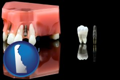 delaware map icon and a titanium dental implant and wisdom tooth