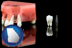 georgia a titanium dental implant and wisdom tooth