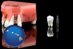hawaii map icon and a titanium dental implant and wisdom tooth