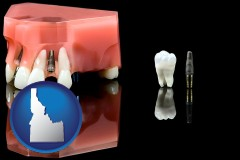 idaho map icon and a titanium dental implant and wisdom tooth