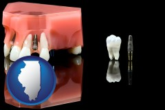 illinois a titanium dental implant and wisdom tooth