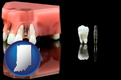 indiana map icon and a titanium dental implant and wisdom tooth