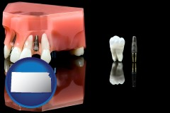 kansas map icon and a titanium dental implant and wisdom tooth