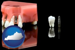 kentucky map icon and a titanium dental implant and wisdom tooth