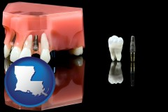 louisiana map icon and a titanium dental implant and wisdom tooth