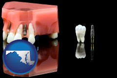 maryland map icon and a titanium dental implant and wisdom tooth