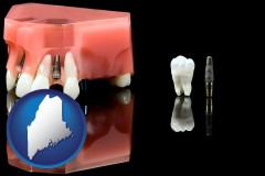 maine map icon and a titanium dental implant and wisdom tooth
