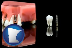 minnesota map icon and a titanium dental implant and wisdom tooth