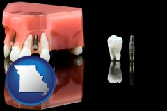 missouri map icon and a titanium dental implant and wisdom tooth