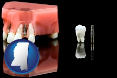 mississippi map icon and a titanium dental implant and wisdom tooth