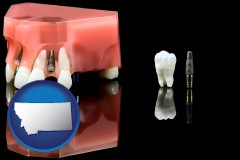 montana map icon and a titanium dental implant and wisdom tooth