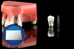 north-dakota map icon and a titanium dental implant and wisdom tooth