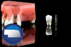nebraska map icon and a titanium dental implant and wisdom tooth