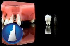 new-hampshire map icon and a titanium dental implant and wisdom tooth