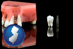 new-jersey map icon and a titanium dental implant and wisdom tooth