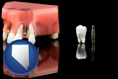 nevada map icon and a titanium dental implant and wisdom tooth
