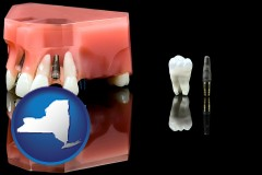 new-york map icon and a titanium dental implant and wisdom tooth