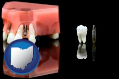 ohio map icon and a titanium dental implant and wisdom tooth
