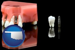 oklahoma map icon and a titanium dental implant and wisdom tooth