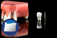 oregon map icon and a titanium dental implant and wisdom tooth