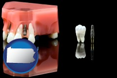 pennsylvania map icon and a titanium dental implant and wisdom tooth