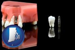 rhode-island a titanium dental implant and wisdom tooth