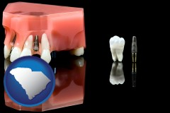 south-carolina map icon and a titanium dental implant and wisdom tooth