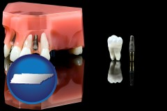 tennessee map icon and a titanium dental implant and wisdom tooth