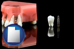 utah map icon and a titanium dental implant and wisdom tooth