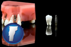 vermont map icon and a titanium dental implant and wisdom tooth