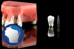 wisconsin map icon and a titanium dental implant and wisdom tooth