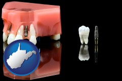 west-virginia map icon and a titanium dental implant and wisdom tooth