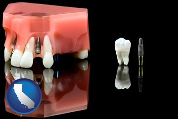 a titanium dental implant and wisdom tooth - with California icon