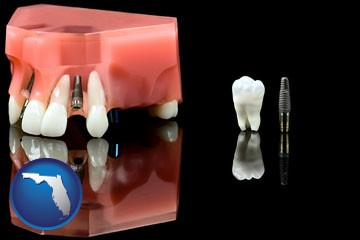 a titanium dental implant and wisdom tooth - with Florida icon