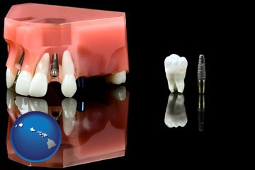 a titanium dental implant and wisdom tooth - with Hawaii icon