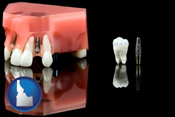 a titanium dental implant and wisdom tooth - with Idaho icon