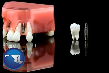 a titanium dental implant and wisdom tooth - with Maryland icon