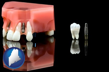 a titanium dental implant and wisdom tooth - with Maine icon