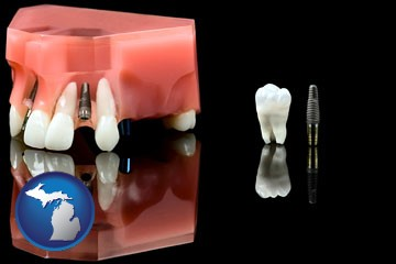 a titanium dental implant and wisdom tooth - with Michigan icon