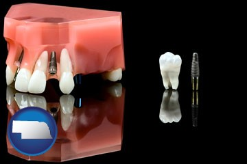 a titanium dental implant and wisdom tooth - with Nebraska icon
