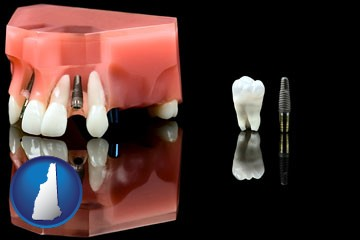 a titanium dental implant and wisdom tooth - with New Hampshire icon