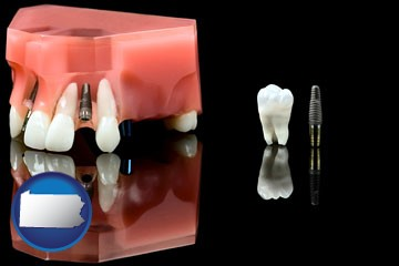 a titanium dental implant and wisdom tooth - with Pennsylvania icon