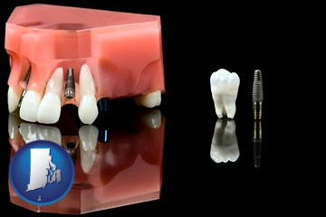 a titanium dental implant and wisdom tooth - with Rhode Island icon