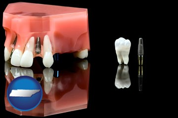 a titanium dental implant and wisdom tooth - with Tennessee icon