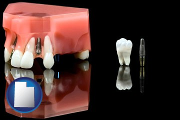 a titanium dental implant and wisdom tooth - with Utah icon