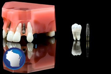 a titanium dental implant and wisdom tooth - with Wisconsin icon
